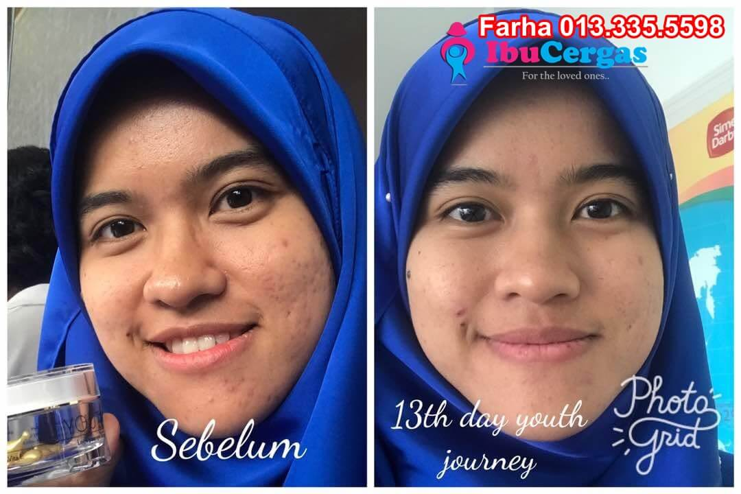 Harga dan Review Youth Shaklee Testimonial Youth Shaklee Testimonial Skincare Youth Shaklee